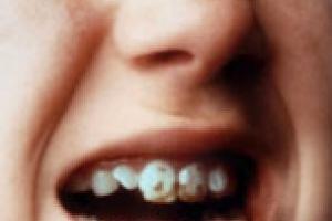 Бисфенол А и винклозолин разрушают детскую зубную эмаль