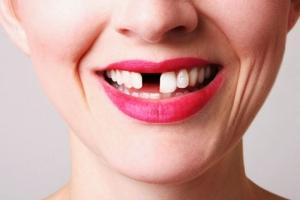 Спасение зубов: совет от стоматологов