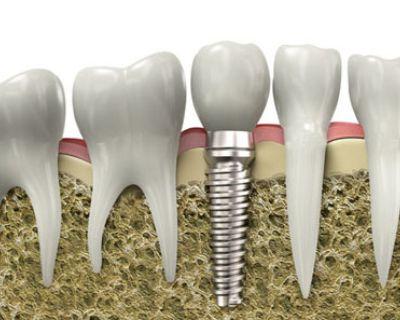 Виды протезирования, используемые после имплантации зубов. Зависимость от видов имплантации