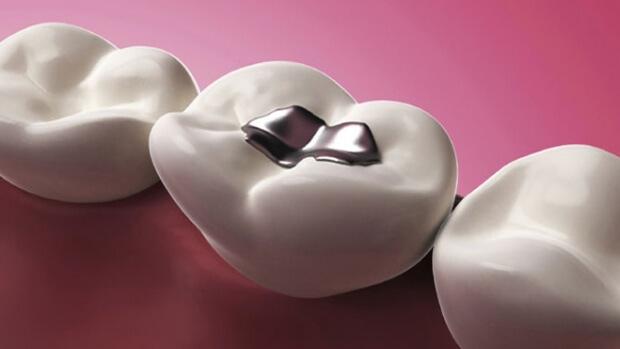 Стоматологи планируют использовать графен в зубных пломбах