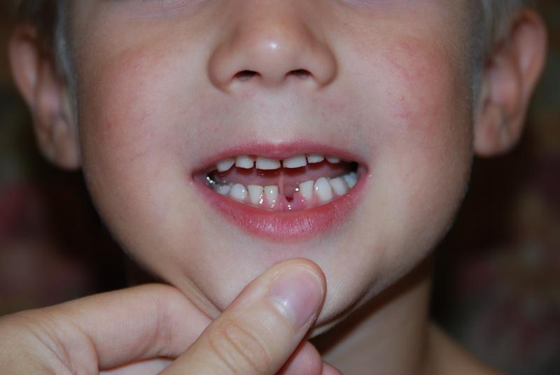 Технологии лечение молочных зубов