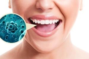 Бактерии в полости рта повышают риск онкологических заболеваний