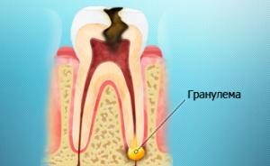 Гранулема зуба: как предупредить, выявить и лечить