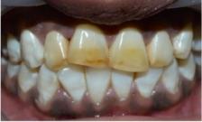 7 рецептов о том, как справиться с зубной болью