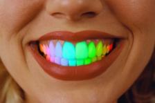 Желтые, коричневые, серые: почему зубы меняют свой цвет?