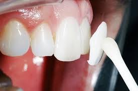 Особенности услуг стоматологии «Мегадента Клиник»