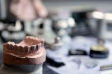 Зубные техники подвержены повышенному риску развития мезотелиомы
