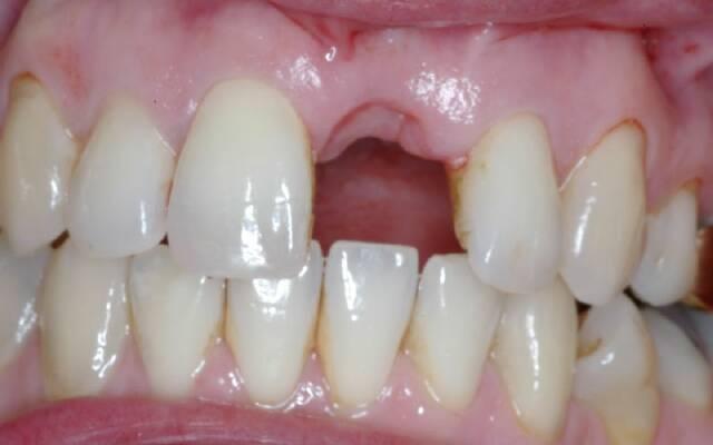 Сухая лунка после удаления зуба — симптомы и лечение