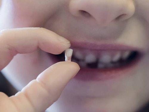 Зубные пломбы будут заполнять стеклом