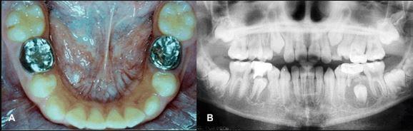 Лечение билатеральных зубосодержащих кист методом марсупиализации