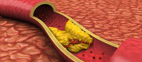 Японские учёные выявили взаимосвязь между выпадением зубов и атеросклерозом