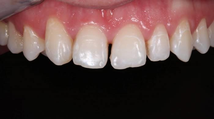 Реабилитация пациента в плане ортодонтического лечения