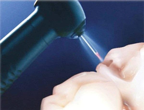 Сравнение лазерного и традиционного лечения зубов и влияние на поверхность и состав дентина