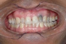 «Мертвый» зуб: причины и симптомы
