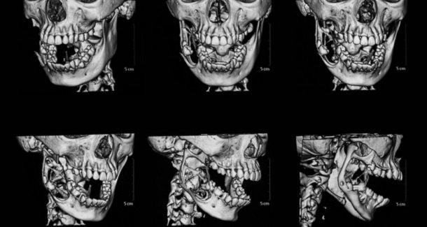 Цифровой дизайн улыбки и CAD/CAM технологии: изготовление провизорных репродукций и окончательных реставраций