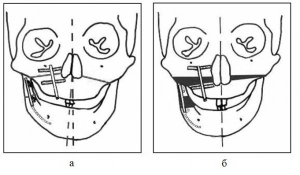 Компрессионно-дистракционный остеосинтез костей лицевого скелета у детей