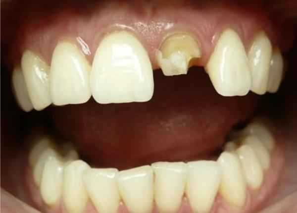 Метод инверсионного протезирования: восстановление культи зуба и фиксация безметалловой коронки