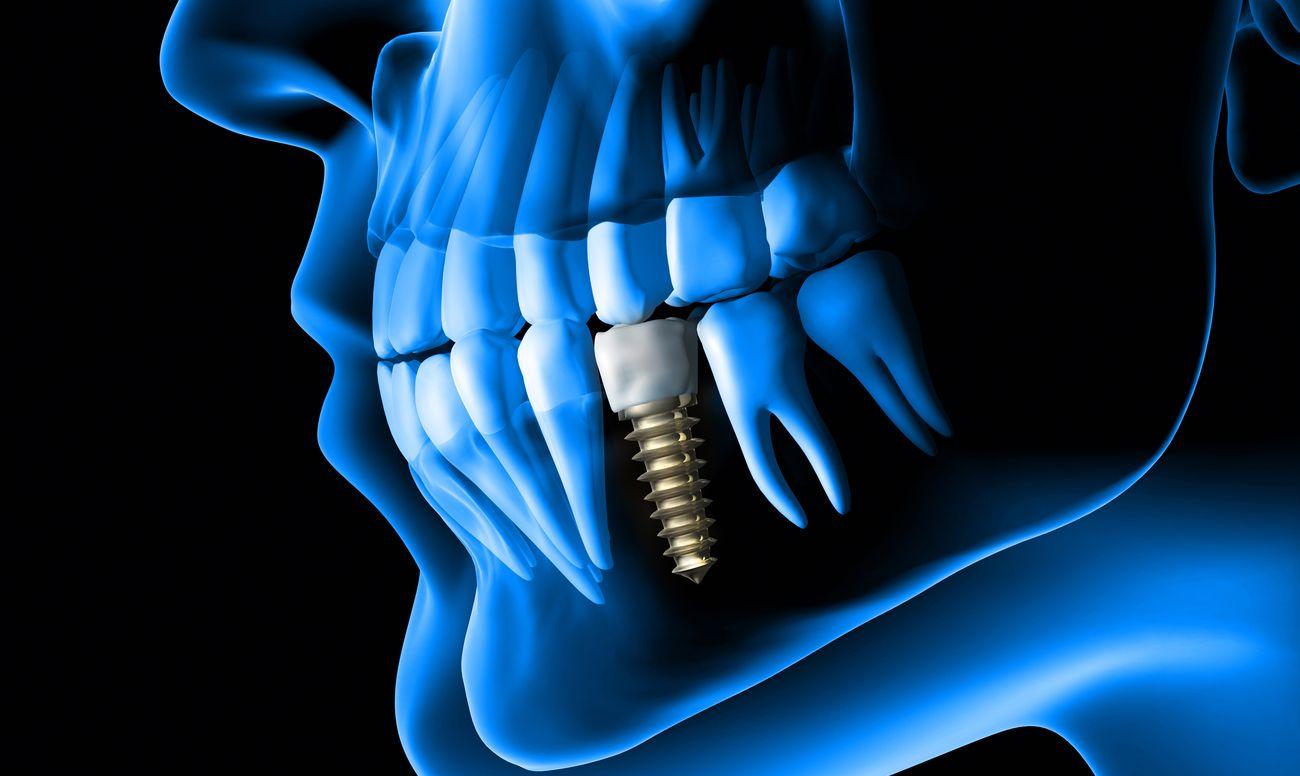 Жвачка сможет диагностировать периимплантит