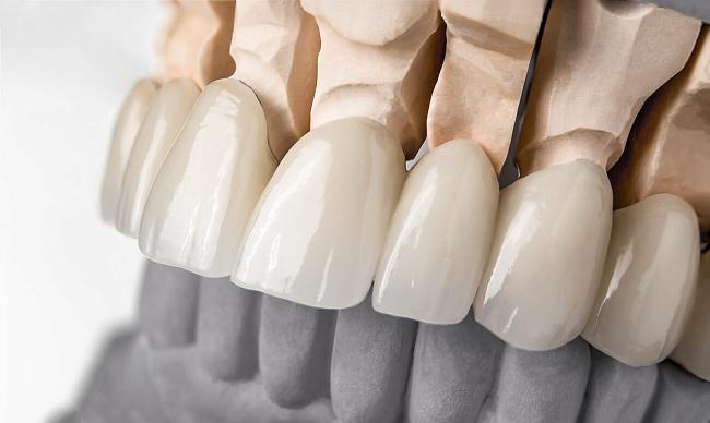 Протезирование при пародонтозе — какие протезы лучше?