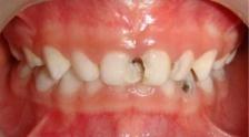 Стоматологическая реабилитация ребенка с задержкой развития