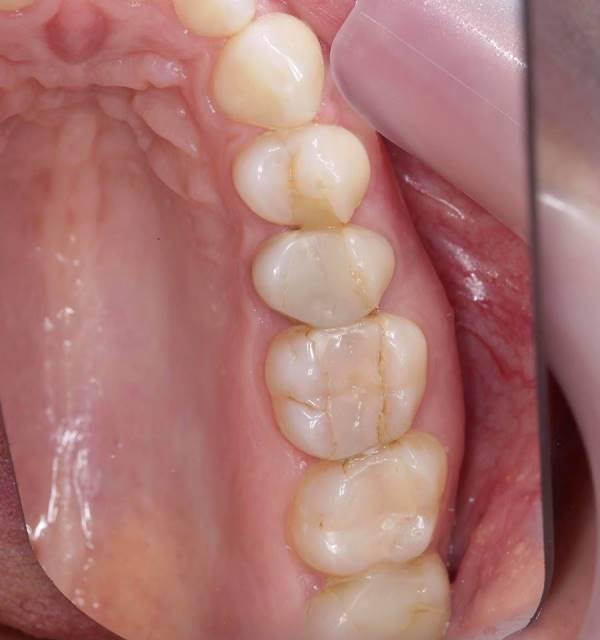 Функциональное и эстетическое восстановление жевательных зубов