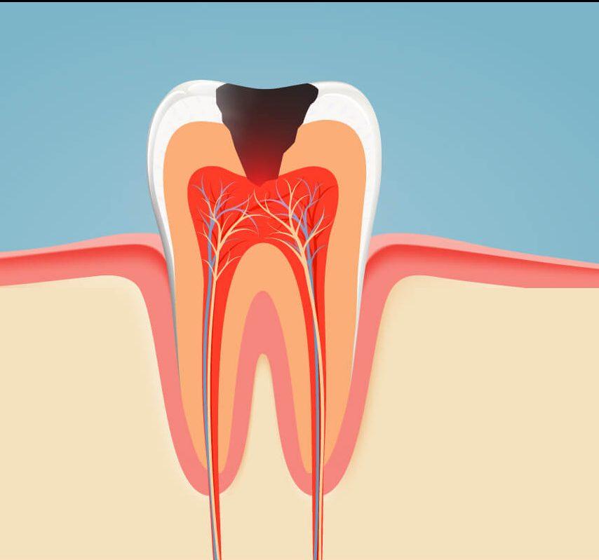 Болезни зубов у человека