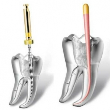 Лечение внутрикорневой инфекции зубов