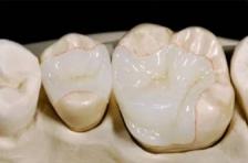 Микропротезирование зубов: вкладки и накладки
