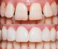 Методы коррекции чрезмерного наклона передних зубов