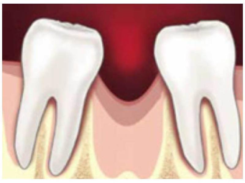 Зуб смещается с места