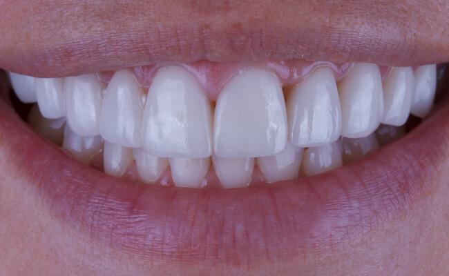 Виниры на передние зубы – что это такое?