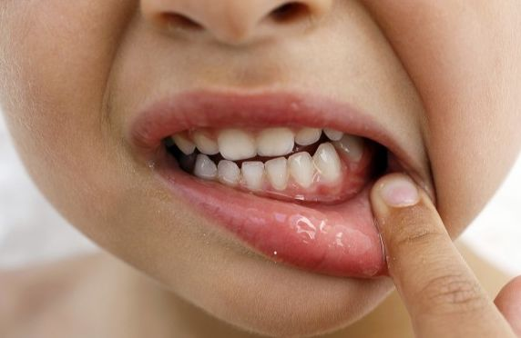 Заболевания десен у детей