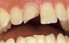 Типы переломов зубов