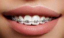 Как избежать развития кариеса во время ортодонтического лечения?