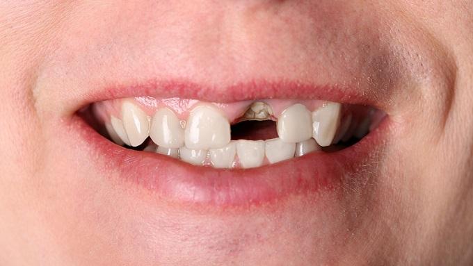 Можно ли спасти зуб, от которого остался только корень?