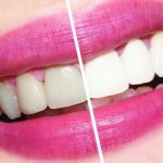 Лазерное отбеливание зубов признано самым безопасным