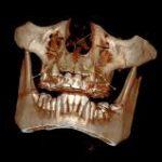 Снимок зубов 3D