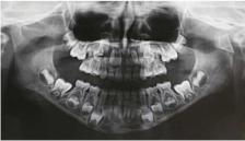 Клинический случай: перелом кондилярного отростка у ребенка
