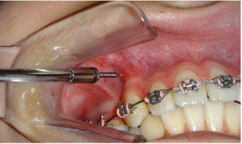 Клинический случай: использование микроостеоперфораций при дистализации клыков