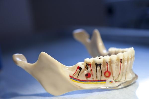 Какой эндодонтический пломбировочный материал эффективнее борется с микробными пленками?