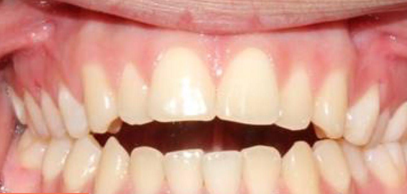 Прикус зубов человека – виды и аномалии