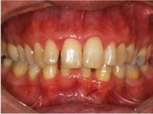 Клинический случай: гингивальная киста