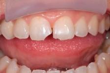 Варианты лечения при сколе коронки зуба