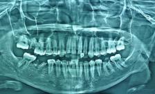 Клинический случай: эндолечение премоляра с необычной анатомией корневых каналов