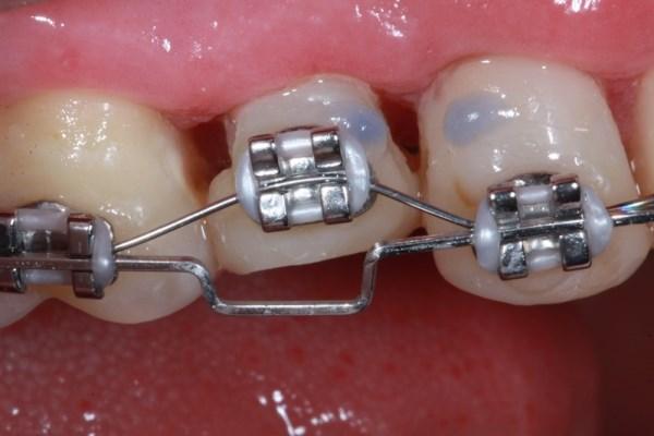 Разрабатывают неинвазивную методику, повышающую вероятность успешного ортодонтического лечения