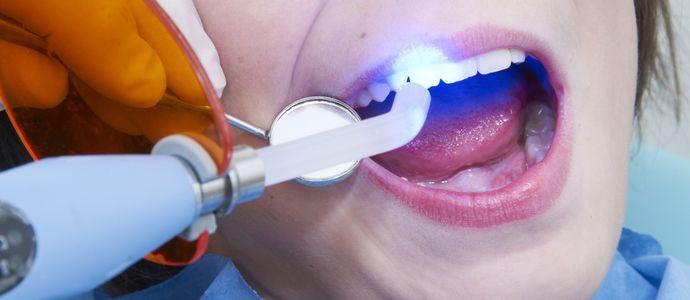 Революция в стоматологии: квантовый лазер выявит начинающийся кариес