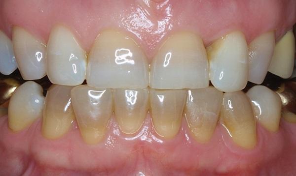 Отбеливание тетрациклиновых дисколораций зубов
