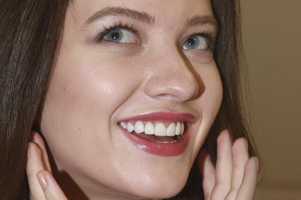 Неинвазивное исправление зоны улыбки ультратонкими винирами Luxneers
