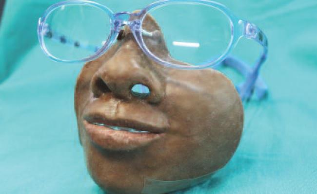 Протезы с механической фиксацией для замещения огромных дефектов лица