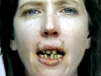 Алкоголь и фолаты влияют на риск развития рака полости рта у женщин